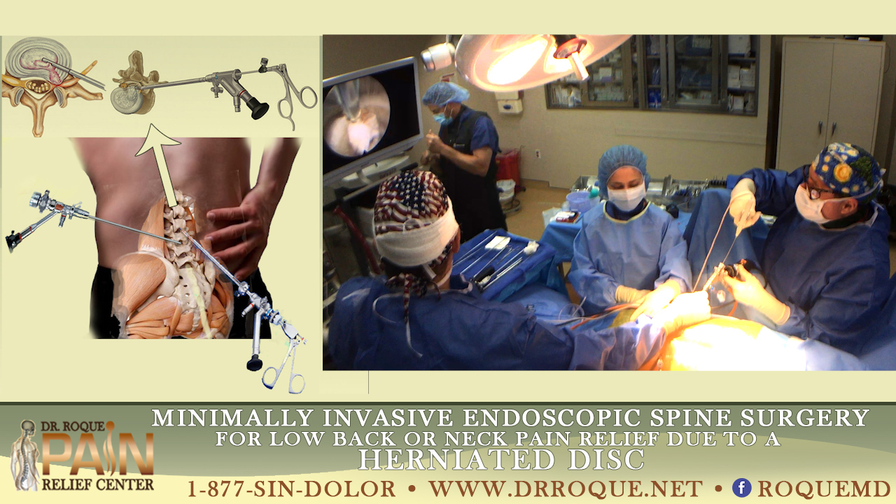 minimally invasive endoscopu surgery