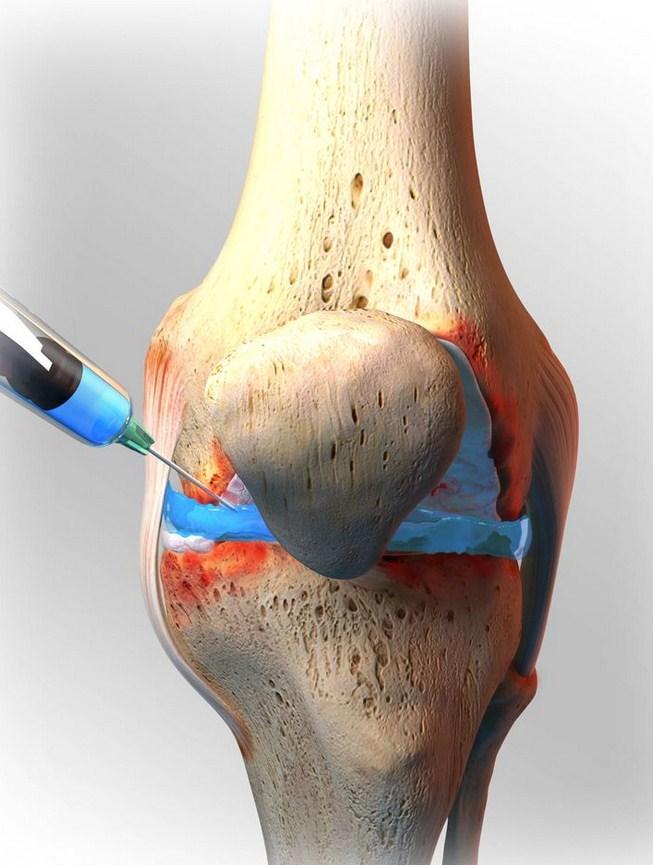 artritic health