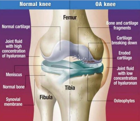 damage knee