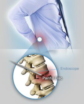 endoscopic disc