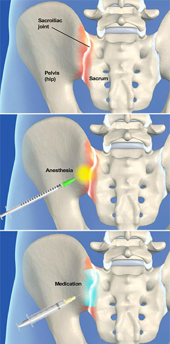 sacroiliac injection