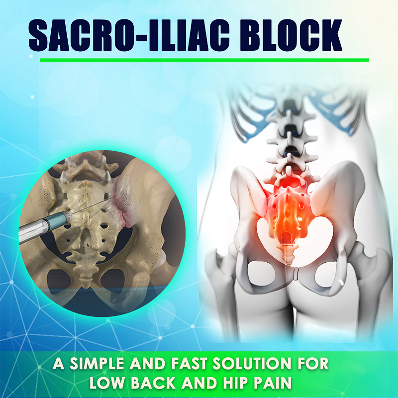 sacroiliac block